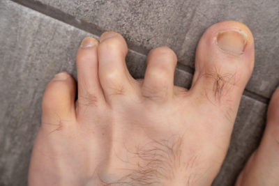 Mens hammer toes with dislocated joints before surgery. Family Foot & Ankle Physicians