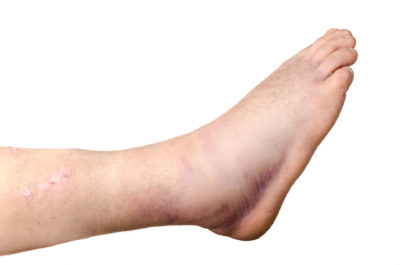 Ankle Fracture Family Foot & Ankle Physicians Greenville NC